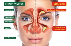 healthy-sinus